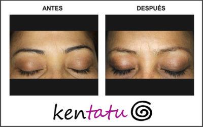 Eliminación de micropigmentación de las cejas mediante láser