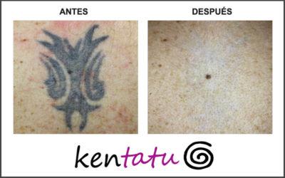 Eliminación de tatuaje de la espalda