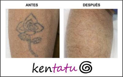 Eliminación de tatuaje del antebrazo