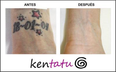 Eliminación de tatuaje de la muñeca
