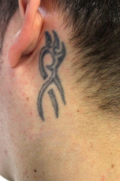 Eliminación De Tatuaje Detrás De La Oreja Kentatu