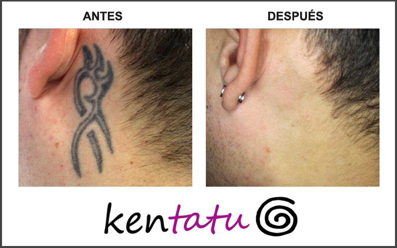 Tatuaje de detrás de la oreja quitado con láser