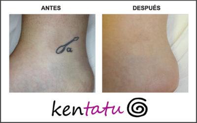 Eliminación de tatuaje en tobillo