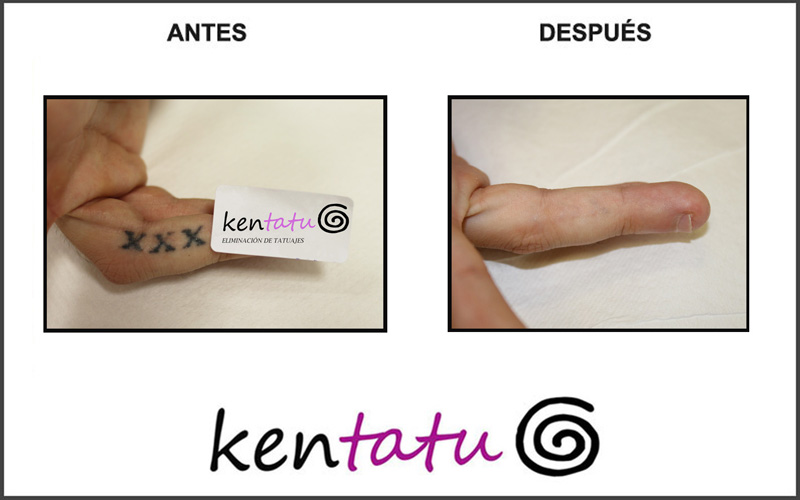 Eliminación de tatuaje en dedos