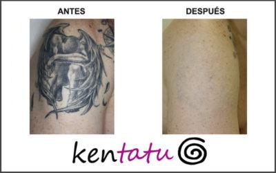 Eliminación de tatuaje en el hombro